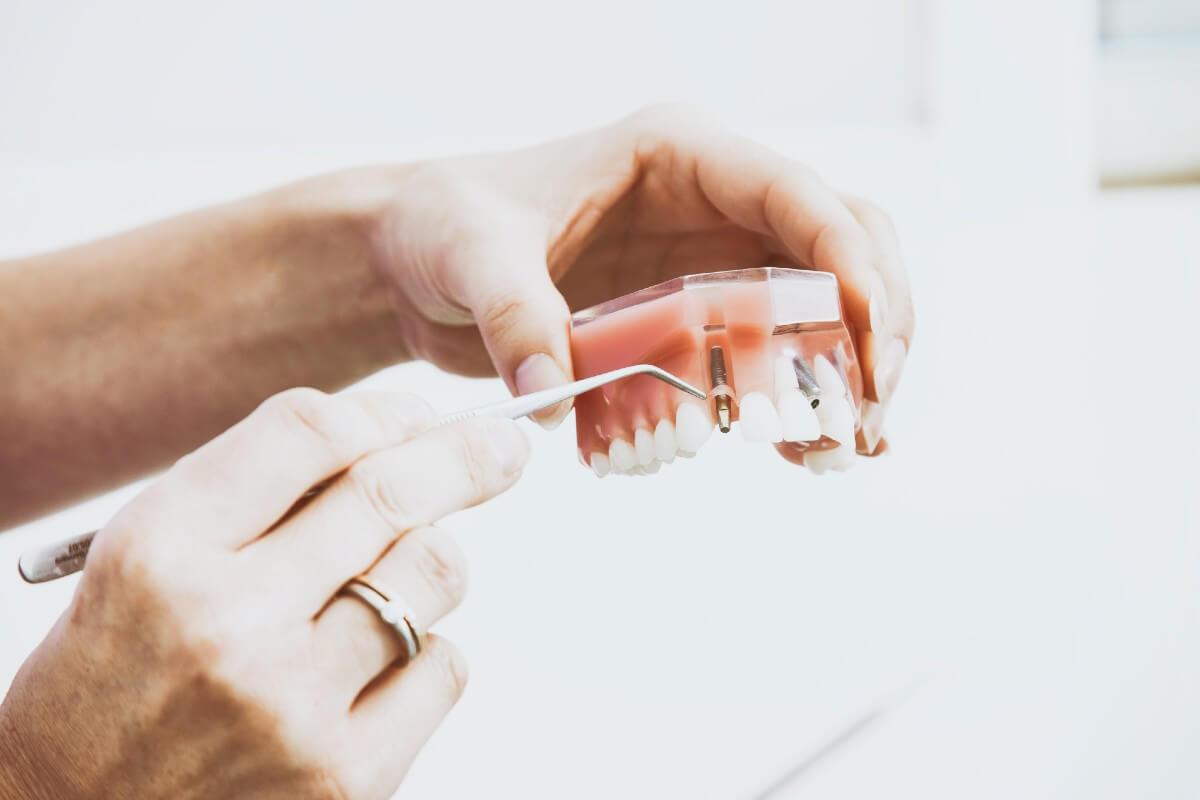 Cómo es el postoperatorio de los implantes dentales