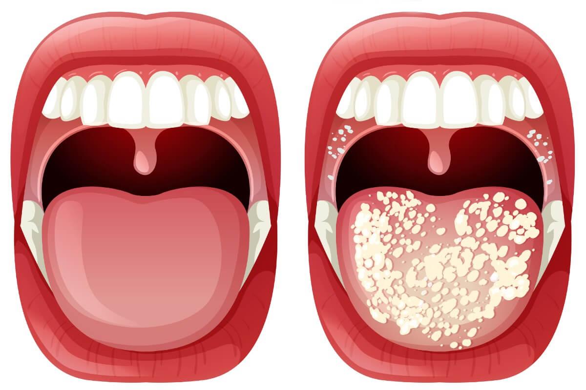 ¿Por qué salen hongos en la boca?