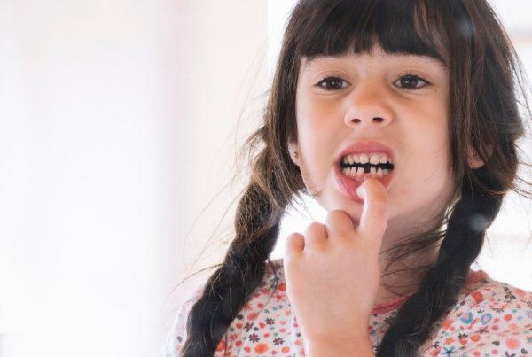 ¿Cuándo es necesario realizar una pulpectomía? - Clínica Infinity Dental
