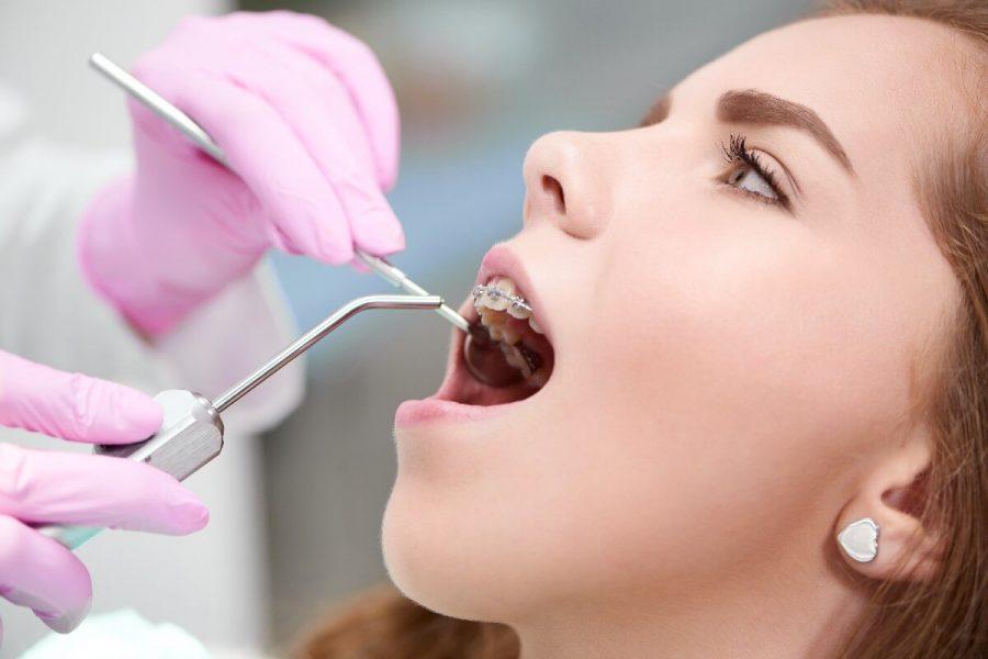 ¿Cómo se corrigen los colmillos altos? - Clínica Infinity Dental