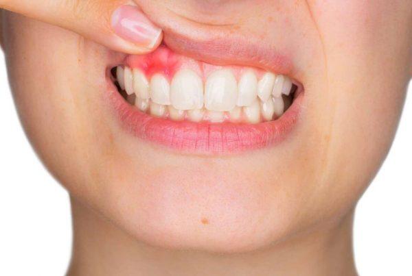 Periodontitis y covid 19