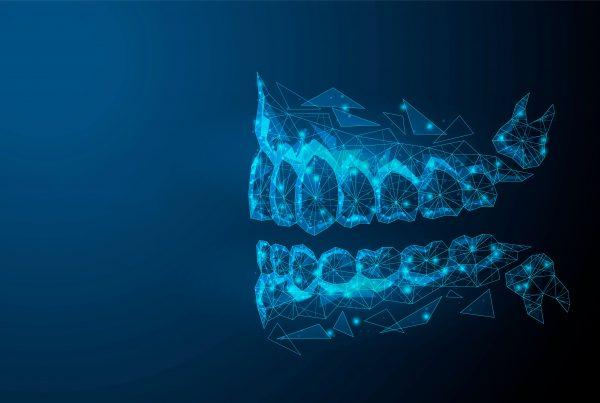 ¿Qué es una maloclusión dental y cómo detectarla? - Clínica Infinity Dental