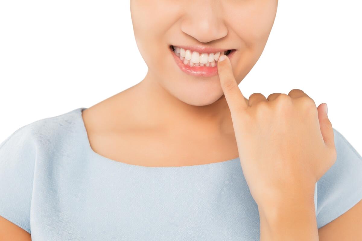 Irritación de encías tras blanqueamiento dental