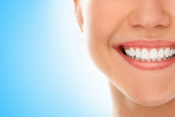¿Cuánto tiempo duran las carillas dentales? - Clínica Infinity Dental