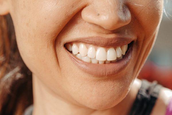 ¿Cuándo es necesario realizar un empaste en un incisivo? - Clínica Infinity Dental