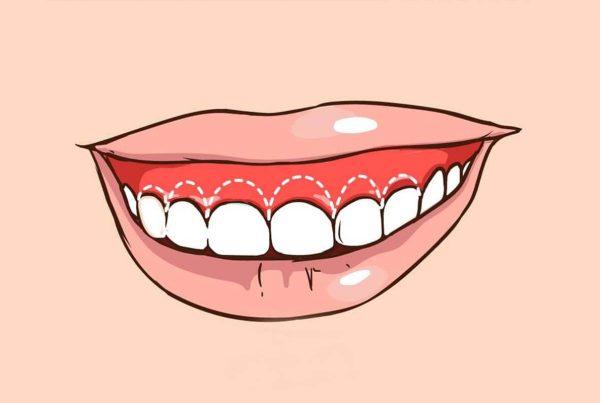 5 formas de mejorar la sonrisa gingival - Clínica Infinity Dental